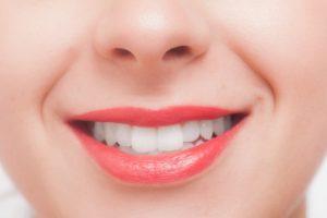 歯が黄ばみやすい 歯 黄ばみ 原因 落とす 白くする 対策